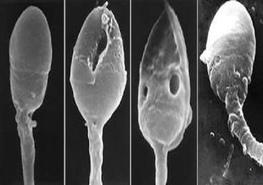 Количество дегенеративных форм в спермограмме